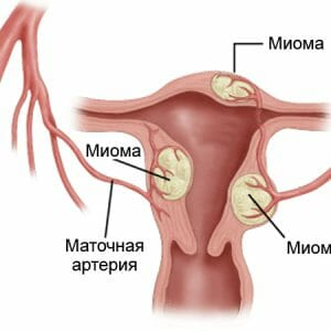 Миомы и маточная артерия