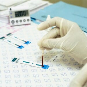 Ca 125 анализ крови при беременности thumbnail