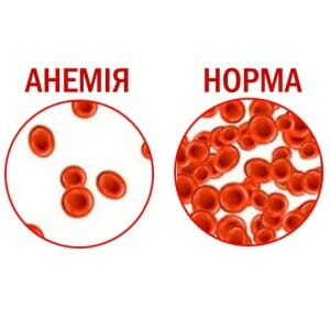 Анемия и норма