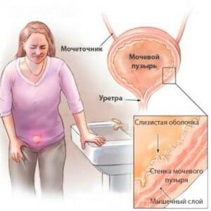 Симптомы при цистите
