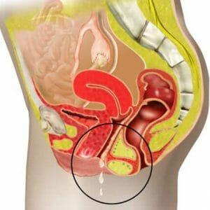 Женские органы в разрезе