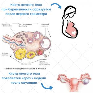 Киста при беременности