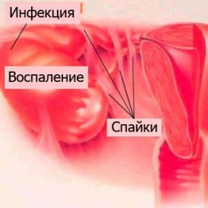 Спайки, инфекция и воспаление