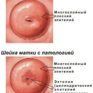 Патологии шейки матки