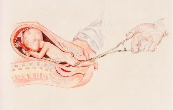 Аборт на позднем сроке