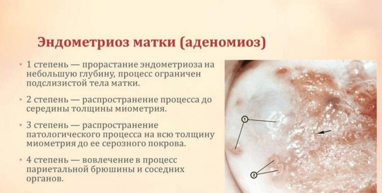Симптомы эндометриоза матки: лечение народными средствами, причины и отзывы