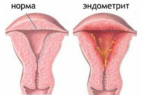 Что такое эндометрит?