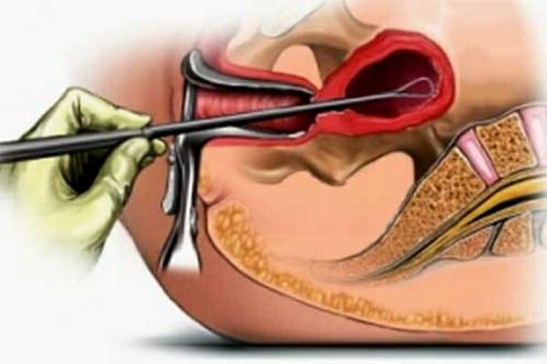 Выскабливание полости матки (кюретаж) – каковы основные цели процедуры?