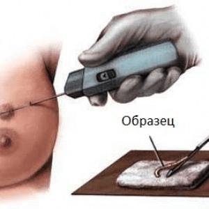 Биопсия груди