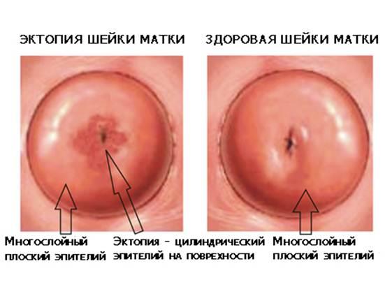 Эктопия шейки матки: фото, лечение, что это такое и чем опасна?