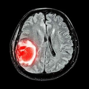 Снимок МРТ опухоли мозга