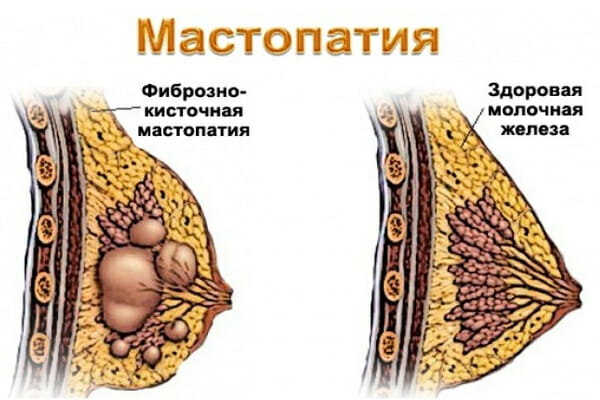 Фиброзно-кисточная мастопатия