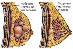 Фиброзно-кистозная мастопатия молочных желез: симптомы, лечение и отзывы