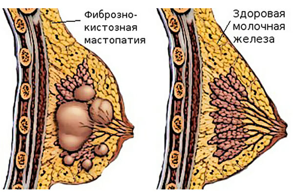 Фиброзно-кистозная мастопатия на груди