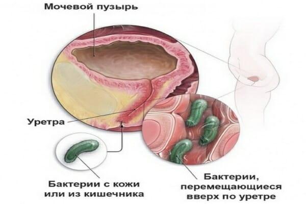 Бактерии в уретре