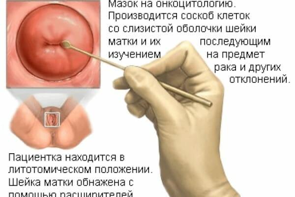 Взятие мазка на онкоцитологию