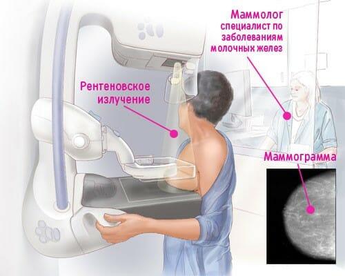Маммография и рентгеновское излучение