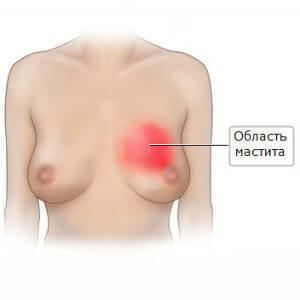Мастит в груди