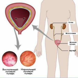 Воспаленный и нормальный мочевой пузырь