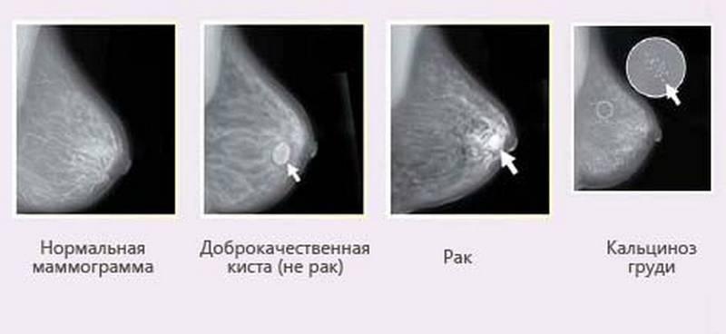 Снимки маммограммы