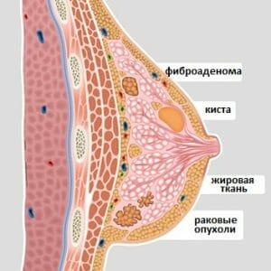 Виды новообразований груди