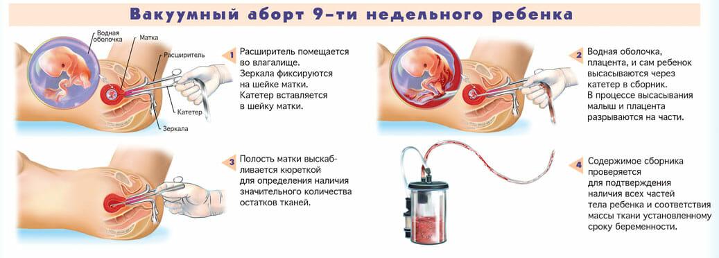 Через сколько начинаются месячные после аборта: медикаментозного и вакуумного?