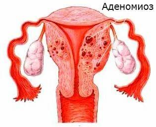 Возможна ли беременность при эндометриозе матки: лечение и отзывы
