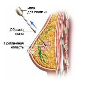 Пункция молочной железы