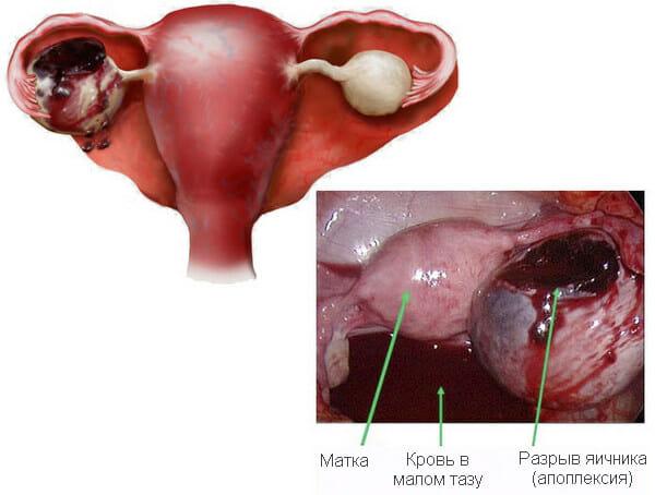 Почему тянет низ живота у женщин: после овуляции, при беременности и после секса