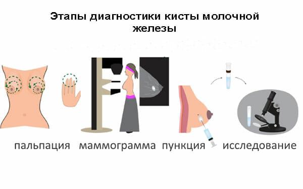 Диагностика кисты молочной железы