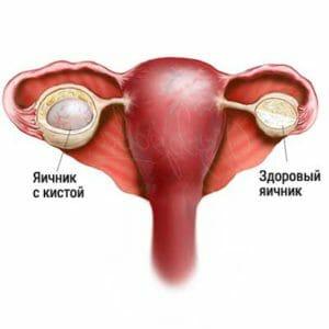 Больной яичник
