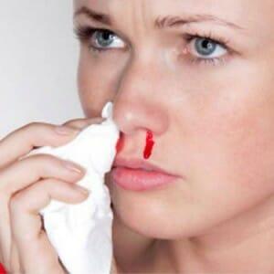 У девушки кровь из носа