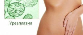 Девушка и бактерии уреплазма