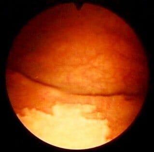 Фото лейкоплакии мочевого пузыря