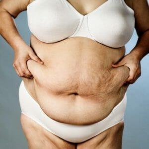 Жирная женщина