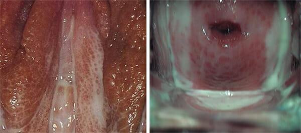 Симптомы трихомониаза фото