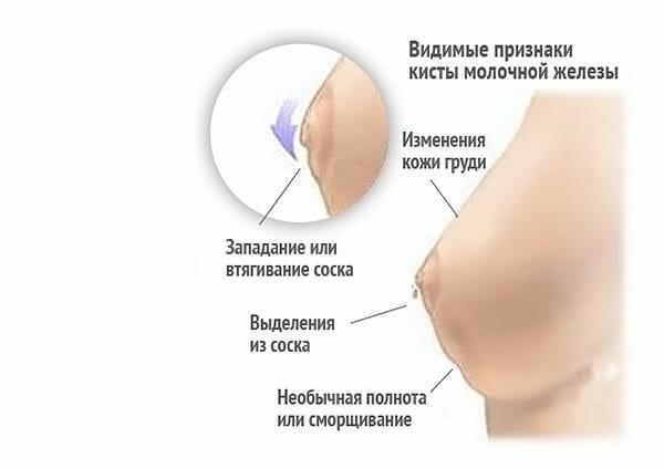 Признаки кисты в груди