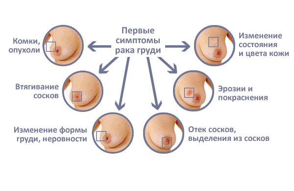 Симптомы рака схема