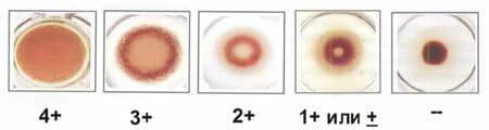 Как выглядит тест на сифилис