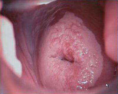 Дисплазия шейки матки у беременных 79