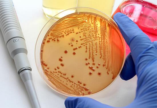 Как выглядят бактерии в чаше Петри