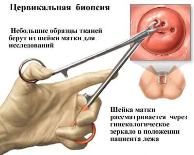 Цервикальная биопсия