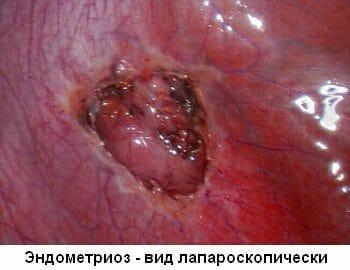 Эндометриоз вид лапароскопически