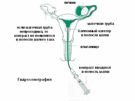 Метод гидросонографии