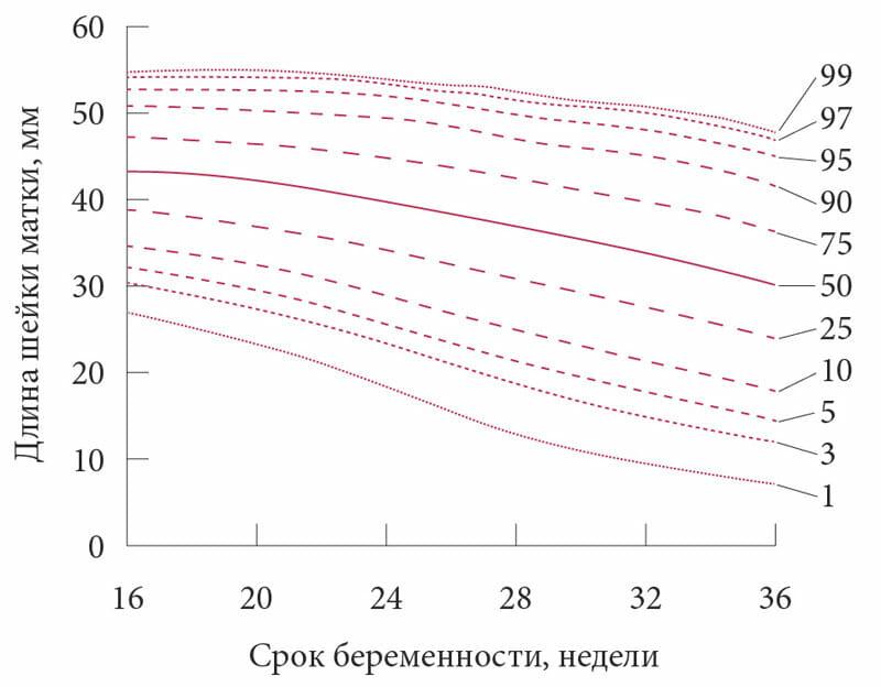 График длина шейки матки на разных сроках беременности