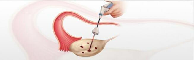 Каутеризация яичников