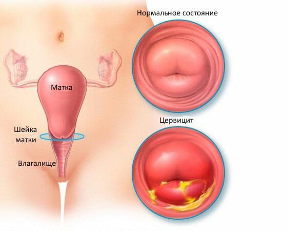 Нормальная шейка матки и цервицит