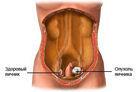 Опухоль в яичнике