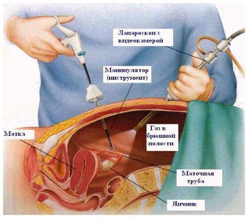 Лапароскопическое удаление матки