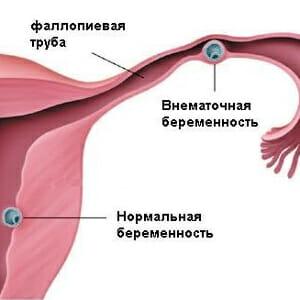 Внематочная беременность рисунок